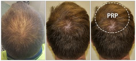 hair loss treatment reviews plasma injections for hair loss seterms com