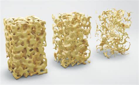 Alimentazione E Osteoporosi by I Cibi Giusti Per Alleviare I Sintomi Dell Osteoporosi