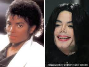 michael jackson skin color in of mysteries jackson s changed color baffled