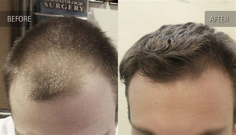 how thick is 1000 hair graft before and after photos of hair transplant clients