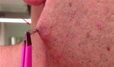 simple ingrown hair within chest this guy pulls out an ingrown hair from his cheek and then