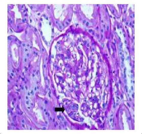 full house pattern renal biopsy tubulo reticular inclusions in lupus nephritis are they
