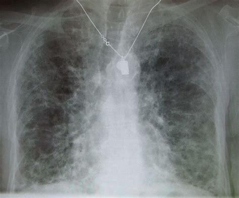 sle eviction notice louisiana fibrose pulmonaire wikip 233 dia