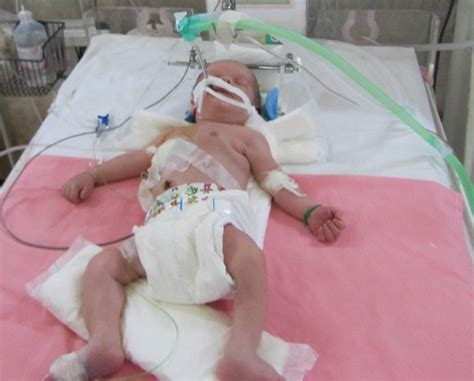 difficulty breathing after c section hypoxic ischemic encephalopathy hie lawyers