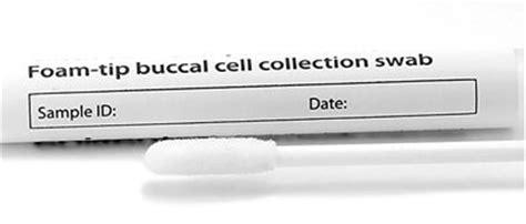 laktoseintoleranz test zu hause laktoseintoleranz test f 252 r eilige
