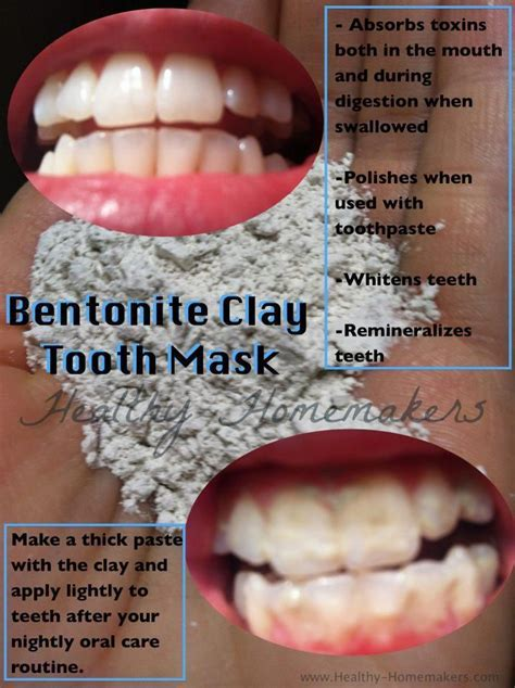 Bentonite Clay Tooth Mask   Health & Fitness that I love