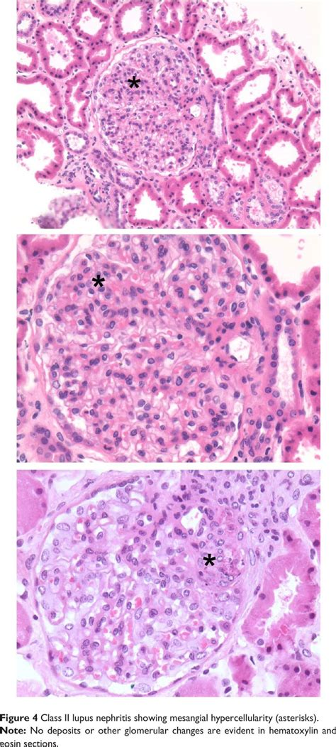 full house pattern renal biopsy 17 best images about renal biopsy pathology in sle on