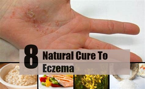 8 effective cures for eczema treatments