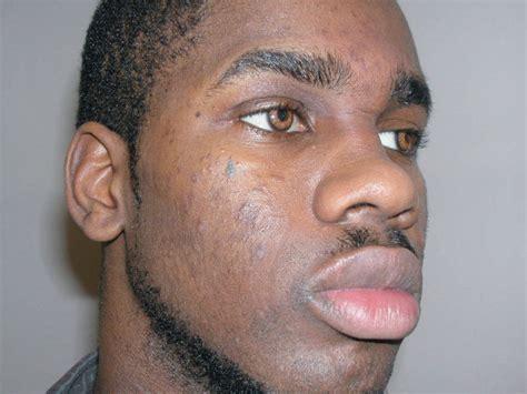 teardrop tattoo under eye meaning toronto murder conviction based on gang expert s false