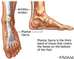 plantar fascia medlineplus encyclopedia image