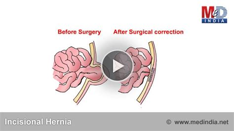 incisional hernia c section health animation incisional hernia medindia
