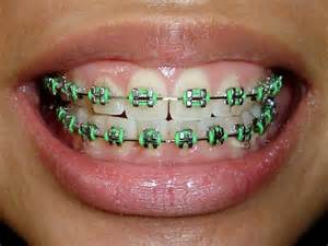 what color braces should i get quiz what colour track braces should i get personality