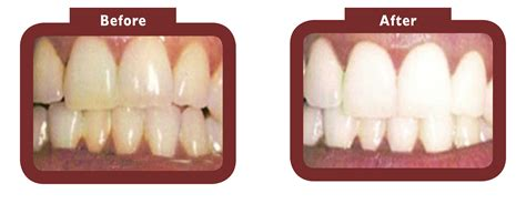 laser teeth whitening la teeth whitening