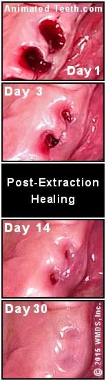 Pictures Of Healthy Healing Tooth Extraction