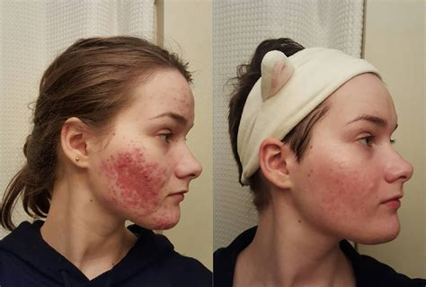 Pixy Foam Anti Acne 40g minoxidil beard and accutane beardstyleshq