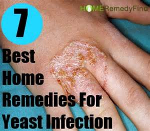 at home yeast infection remedies top selections of home remedies yeast infection yeast101info