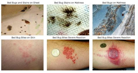 bed bug symptoms pictures     treatment