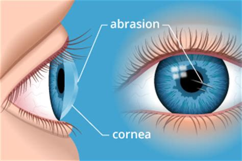 image gallery scratched cornea