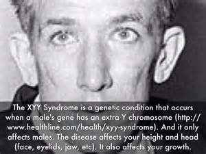 disease on y chromosome xyy syndrome by nathanael card