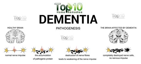 dementia when to put 10 early signs and symptoms of dementia top 10 home remedies