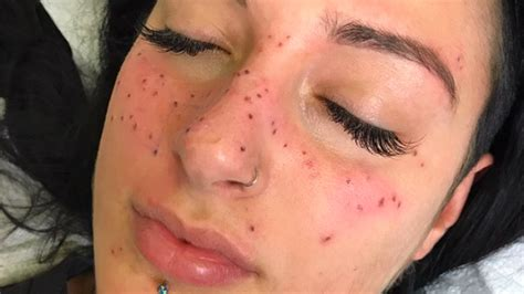 cosmetic tattoo freckles tattooing freckles of your astrology sign is now a thing