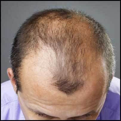 pattern hair loss cure is coffee the future of baldness and hair loss treatment