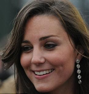 kate middleton wrinkles on forehead london medical aesthetic clinic bride to be kate