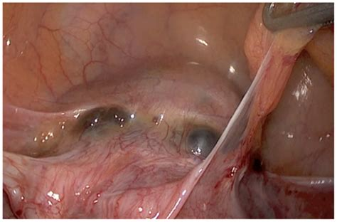 uterine scarring after c section frontiers laparoscopic treatment of placenta percreta