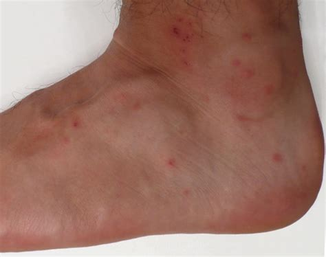 what do bed bites look like what do bed bug bites look like 7 bite symptoms with