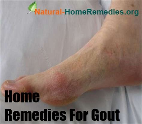 ways to treat gout naturally foods that contain high