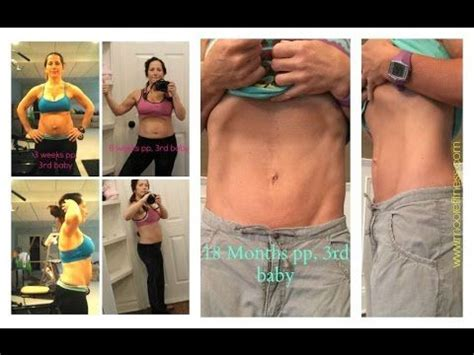 burning sensation in stomach after c section the 25 best ideas about diastasis recti exercises on