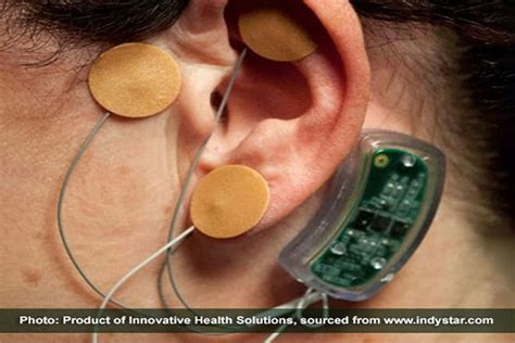 The Bridge Detox Device by New Ear Device To Help In Addiction Recovery Florida