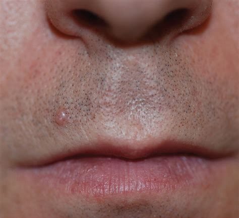skin colored skin colored dome shaped papule on the lip photo