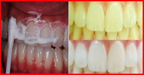 como blanquear dientes en casa recetas sensacionales para blanquear sus dientes en casa