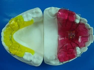 apparecchio ortodontico mobile ortodonzia mobile dentista