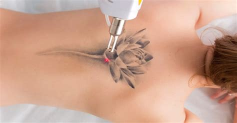 laser surgery for tattoo removal laser removal i motives i complications i risks i