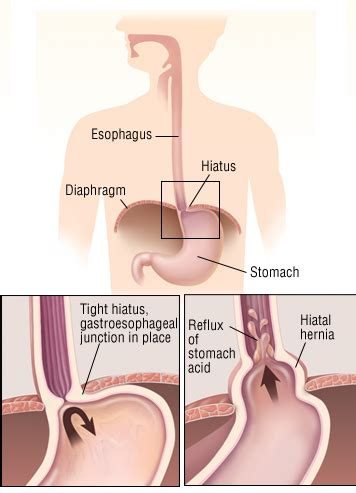 related keywords suggestions for hiatal hernia symptoms