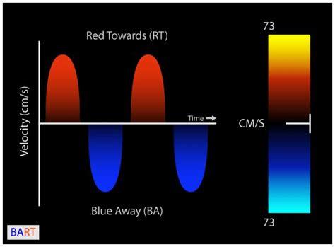 color flow doppler pin by cicaleae on doppler