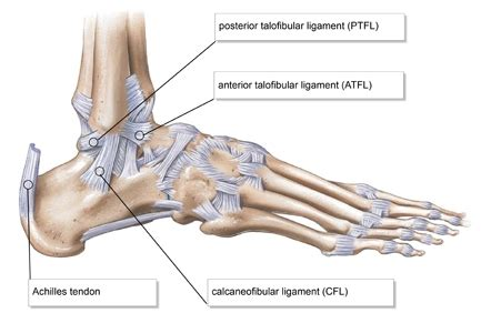 si鑒e lcl ankle sprains your prevent injuries