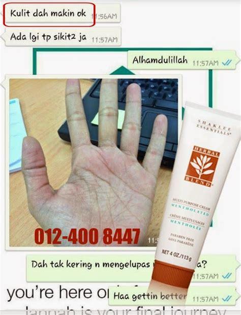 mengatasi kulit tangan kering  mengelupas