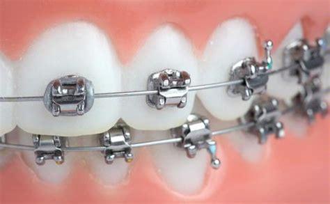 Pembersihan Karang Gigi Di Klinik Nadira kenapa banyak karang gigi setelah pasang kawat klinik