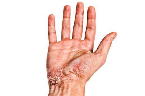 imagenes de uñas quemadas quemaduras primeros auxilios tipos y c 243 mo curarlas