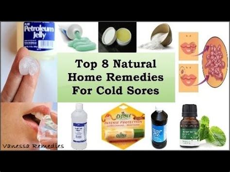 how to get rid of a cold sore top 8 home remedies
