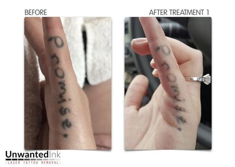 can you remove a tattoo right after you get it 25 best ideas about finger tattoos fade on
