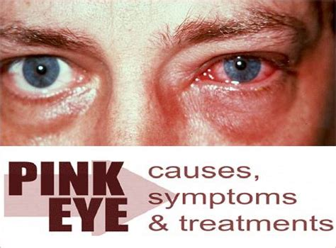 symptoms of pink eye what is pink eye conjunctivitis causes symptoms and treatment onlinehomeremedies