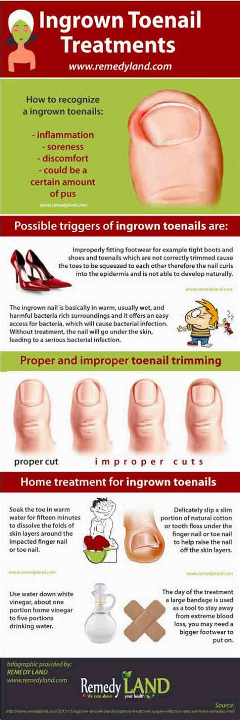 home remedy for ingrown toenails