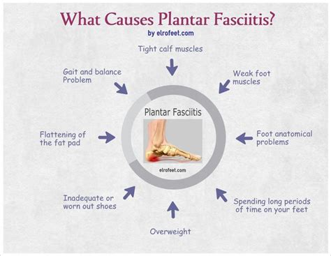 Can Foot Detox Help With Plantar Fasciitis by 17 Best Images About Plantar Fasciitis On