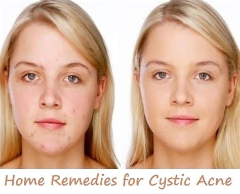how to get rid of cystic acne active home remedies