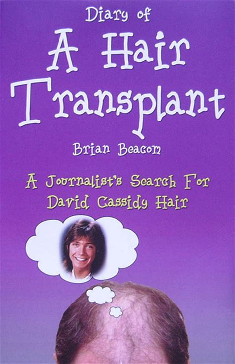 david cassidy the last books david cassidy in print diary of a hair transplant