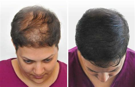 pics of scalp micropigmentation on people with long hair scalp micropigmentation long hair om hair